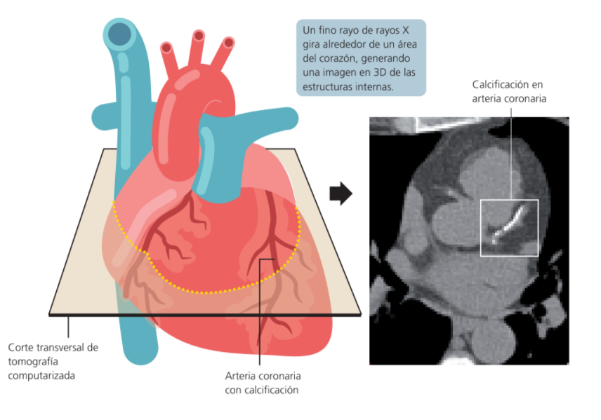 TAC coronario