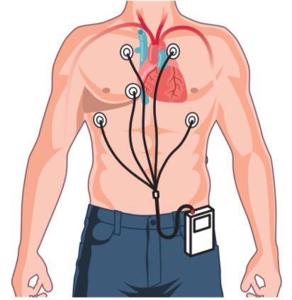 MAPA (Holter presión arterial)